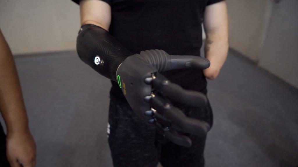 Smart-Life-artificial-hands