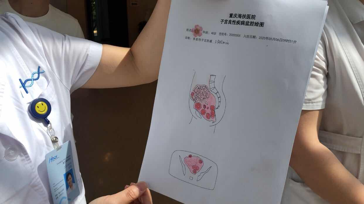 The anatomical drawings of uterus byThe doctors in Haifu Hospital